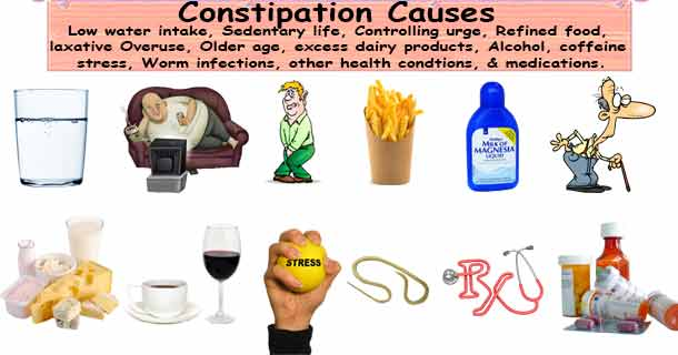 Constipation Causes