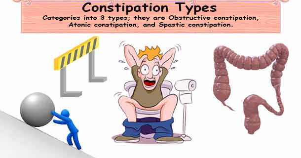 Constipation Types