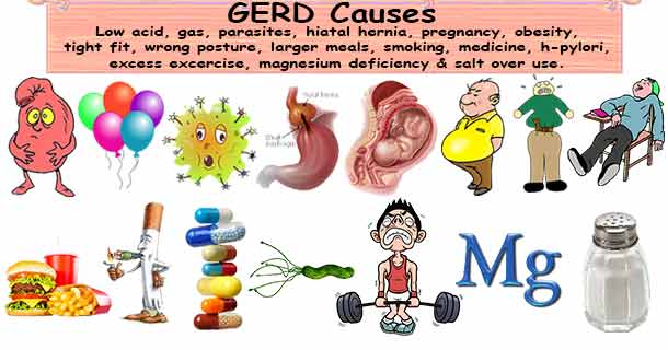 What are the symptoms of GERD?