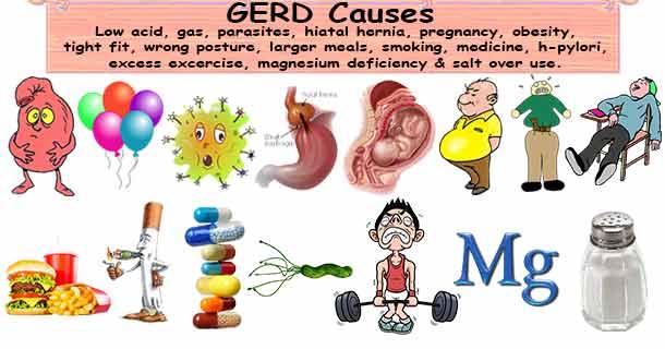 GERD Causes