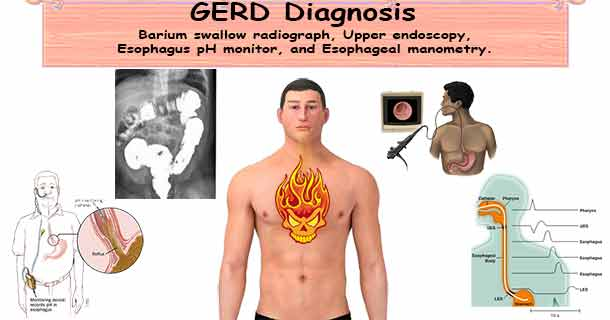 Heartburn GERD Diagnosis