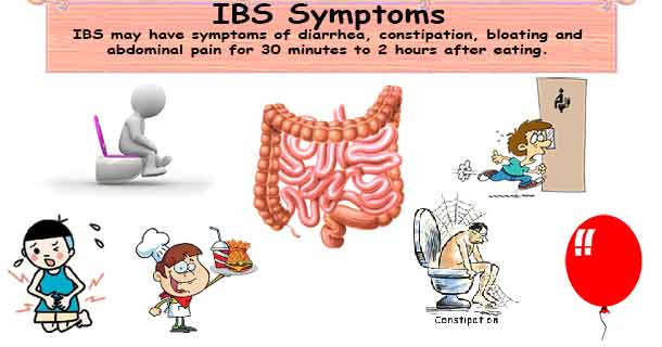 Irritable bowel syndrome symptoms